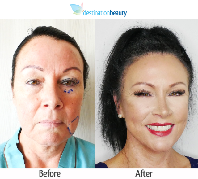 Before and After Pictures Facelift Thailand - DestinationBeauty