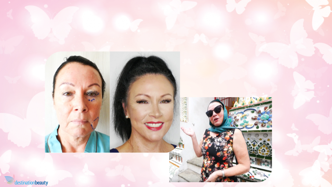 Face Lift and Eyelid Surgery Thailand !! Brigid is Now Looking 10 years younger!