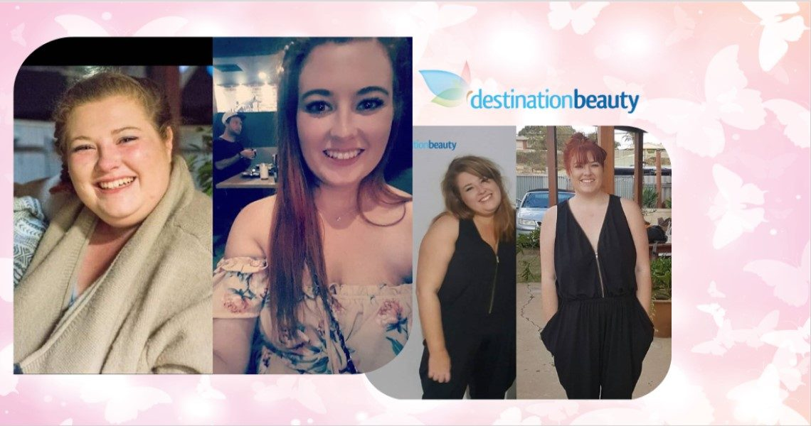 Gastric sleeve surgery in Thailand with Destination Beauty! Danica lost 54 kgs in 8 months!