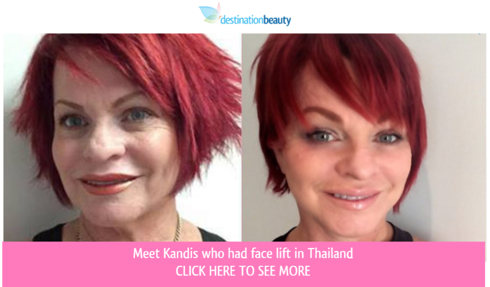 face lift thailand before after