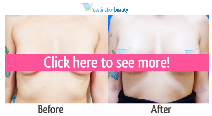 breast implants thailand before and after