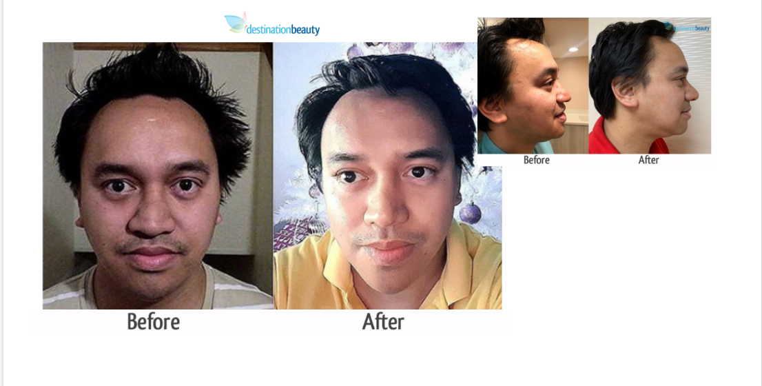 Nose Job Thailand – Corey's Nose Reshaping in Thailand!