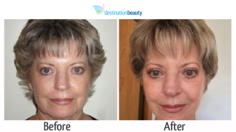 face lift before and after thailand