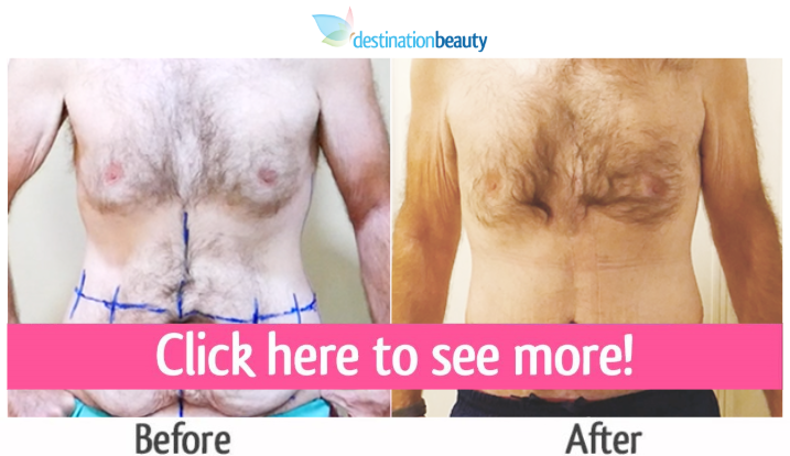 belt lipectomy tummy tuck thailand before after