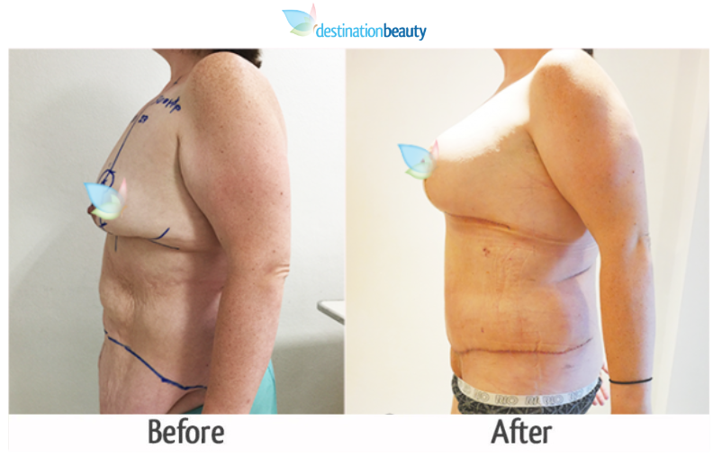 tummy tuck thailand before and after
