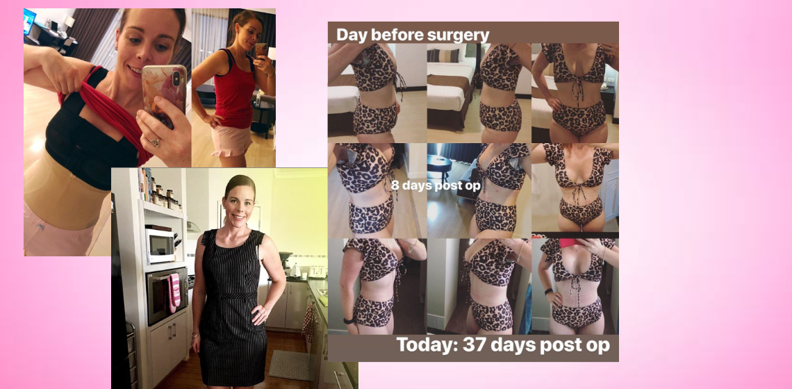 Mummy Makeover in Thailand after Breast Augmentation with Lift and Tummy Tuck