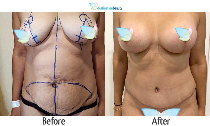 breast augmentation with lift, tummy tuck_dr_angkana