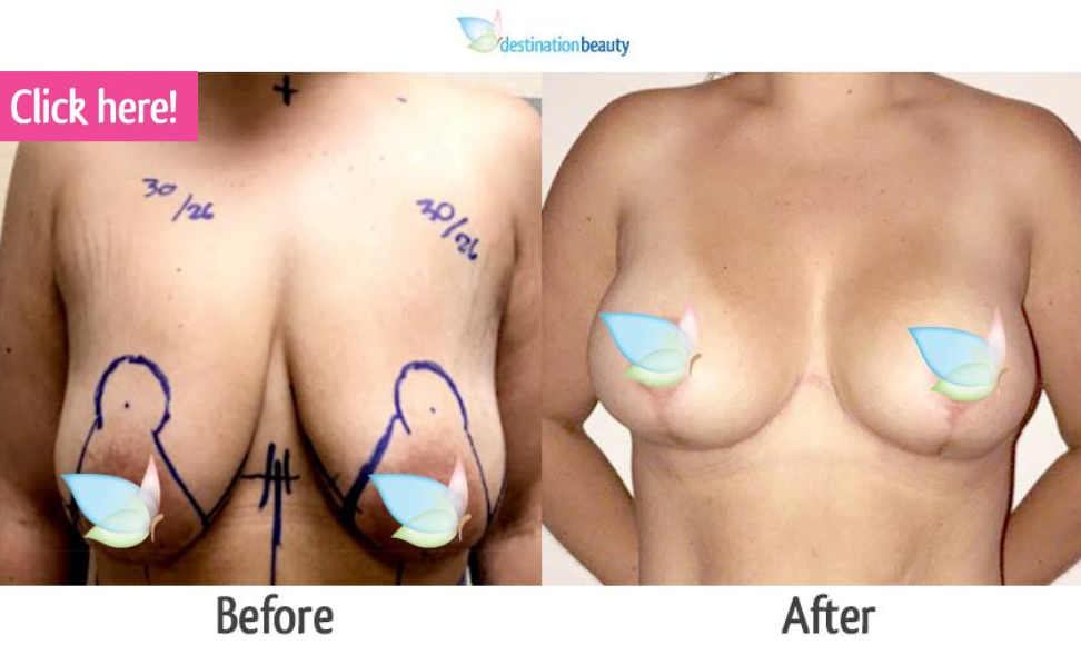 breast augmentation with lift thailand