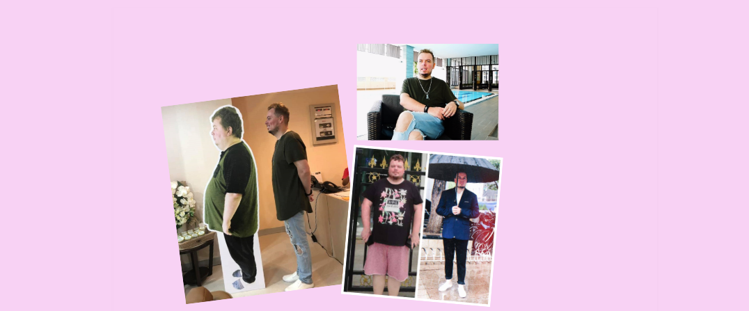 Gastric Sleeve: See how Shaun lost 51 kgs in 7 months