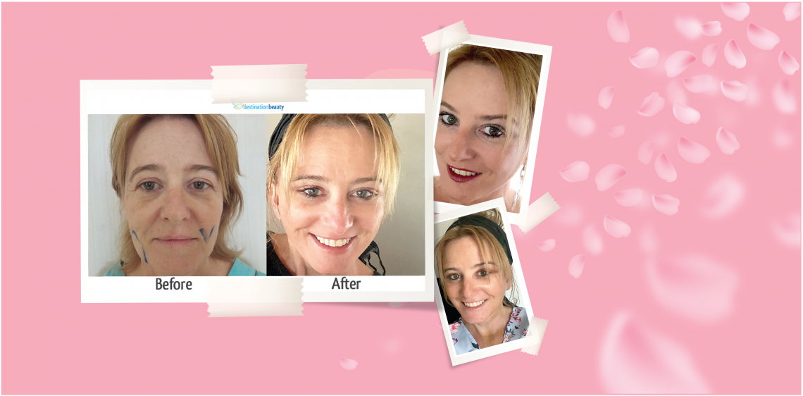 Face lift surgery in Thailand !! See Shelley's amazing results!
